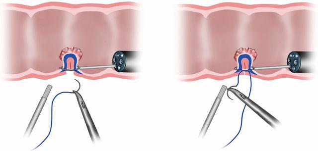 chirurgia endoluminale del retto